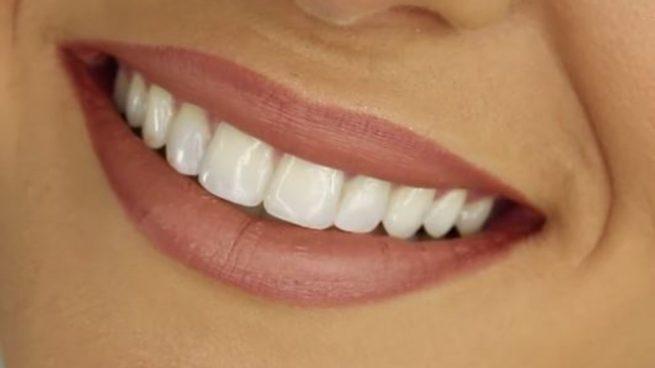 Cuando las personas quieren tener los dientes extremadamente blancos pueden estar experimentando blancorexia.