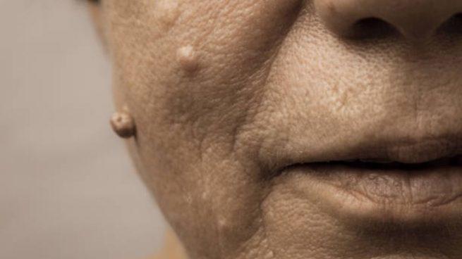 remedios naturales para quitar verrugas en la cara
