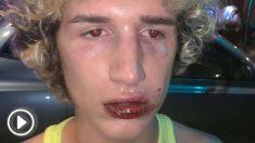 Brutal paliza a un joven italiano a la salida de una discoteca de ambiente gay en Valencia.