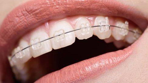 Guía de pasos para saber cómo cepillarse los dientes cuando llevas brackets