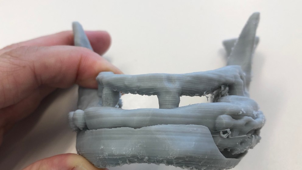 La impresión 3D, a la vanguardia en medicina