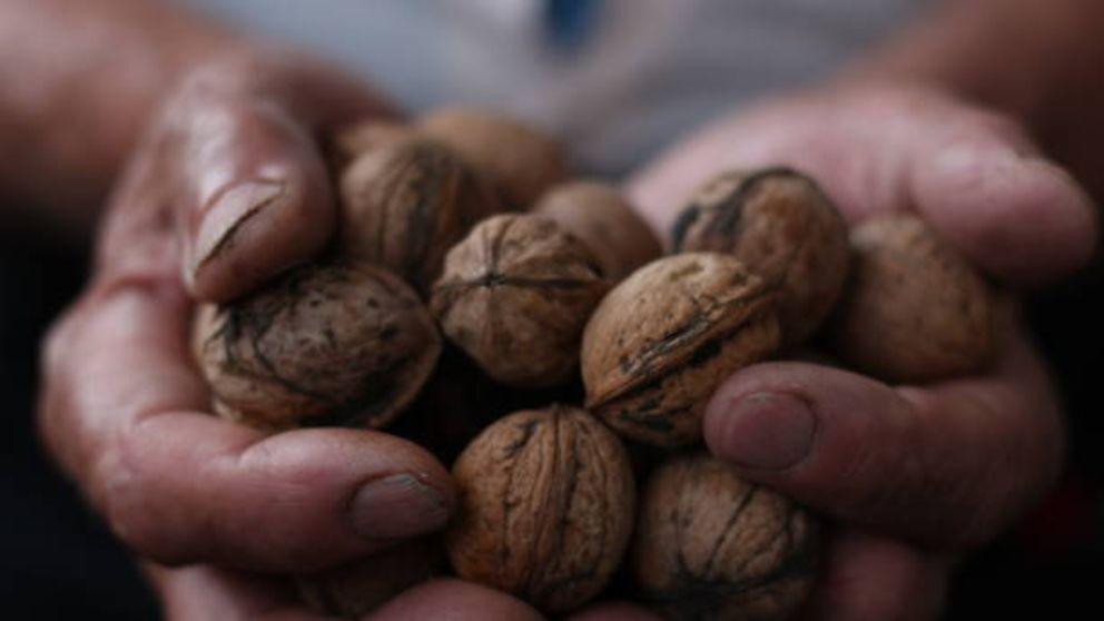 Cómo quitar las manchas de nueces de las manos paso a paso