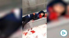 Imagen de uno de los heridos en la pelea en Badalona