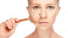 Las manchas en la piel pueden aparecer por diversos motivos