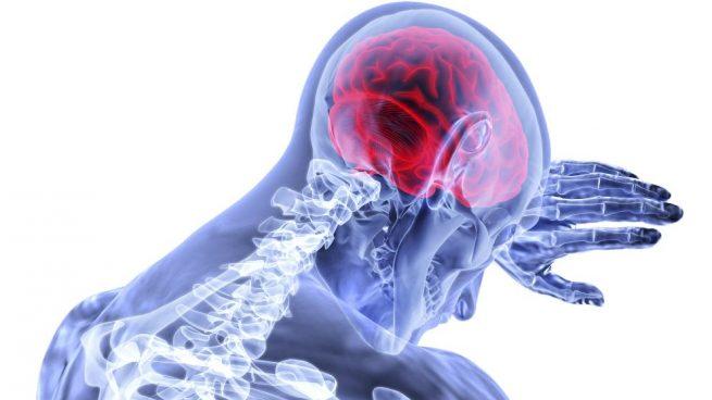 La hipoxia cerebral