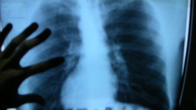La radiografía lumbar