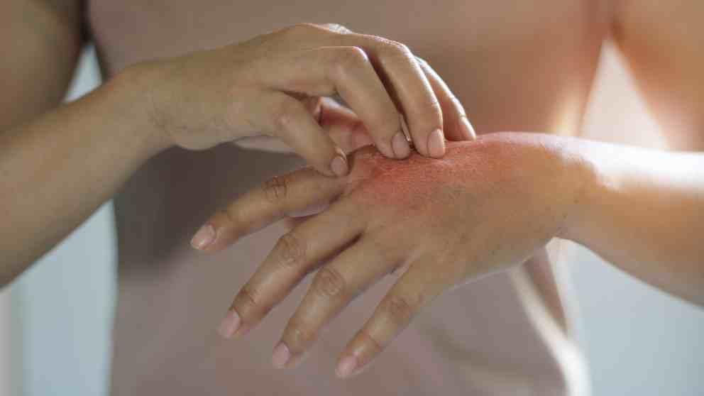 Utilidades y tratamientos con el canestén