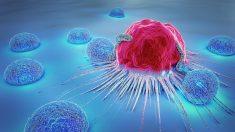 Diferencias entre un tumor y un quiste