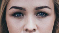 La caspa puede afectar mucho a las cejas