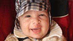 Descubre cómo prevenir el labio leporino en el bebé