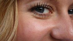 Tratamiento de la piel alrededor de los ojos