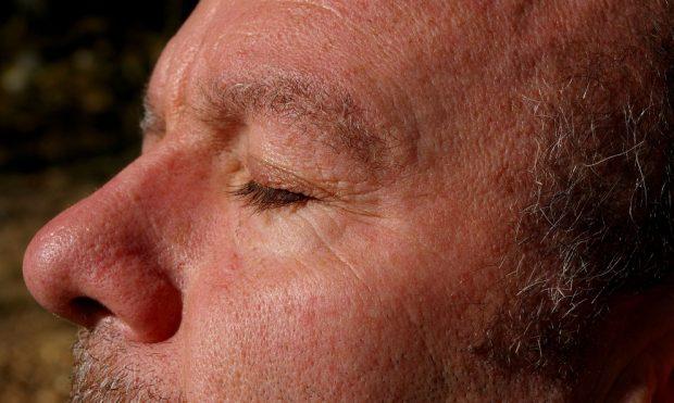 Tratar la piel alrededor de los  ojos