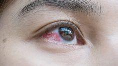 Prevención de las manchas rojas en los ojos