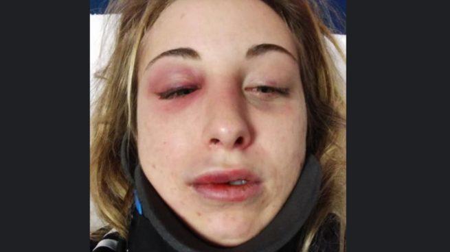 Facebook: Publica fotos después de recibir una paliza de su novio