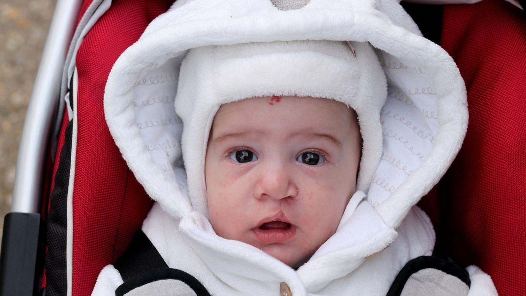 Descubre qué es el labio leporino del bebé y cómo se debe tratar