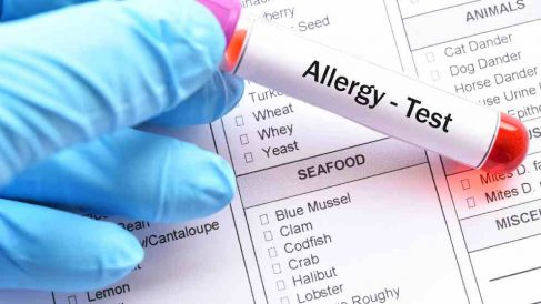 Componentes alérgenosen alimentos