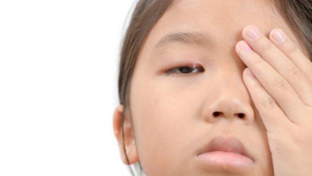 Orzuelo y chalazión en los niños: similitudes, diferencias y tratamientos