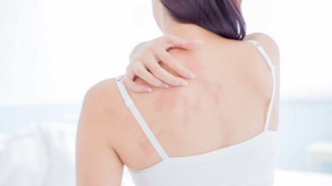 Remedios Caseros Para Tratar Las Alergias De La Piel