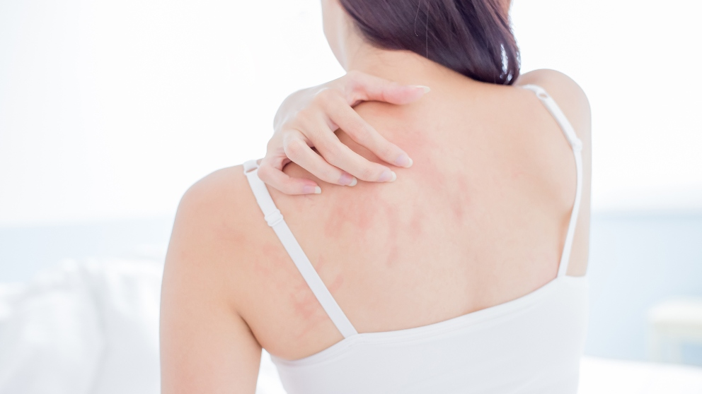 como curar alergias en la piel naturalmente
