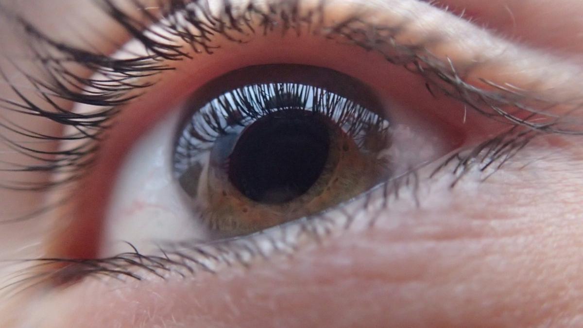 Moscas volantes alrededor de los ojos: causas y cómo quitarlas