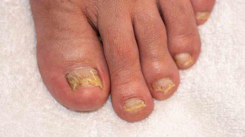 Tratamiento de las uñas amarillas y gruesas