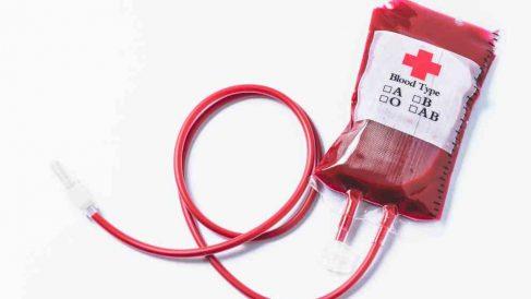 Problemas renales: la hemodiálisis