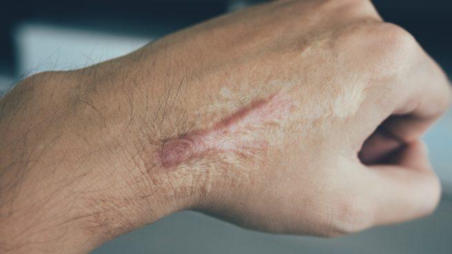 Durabilidad de cicatrices