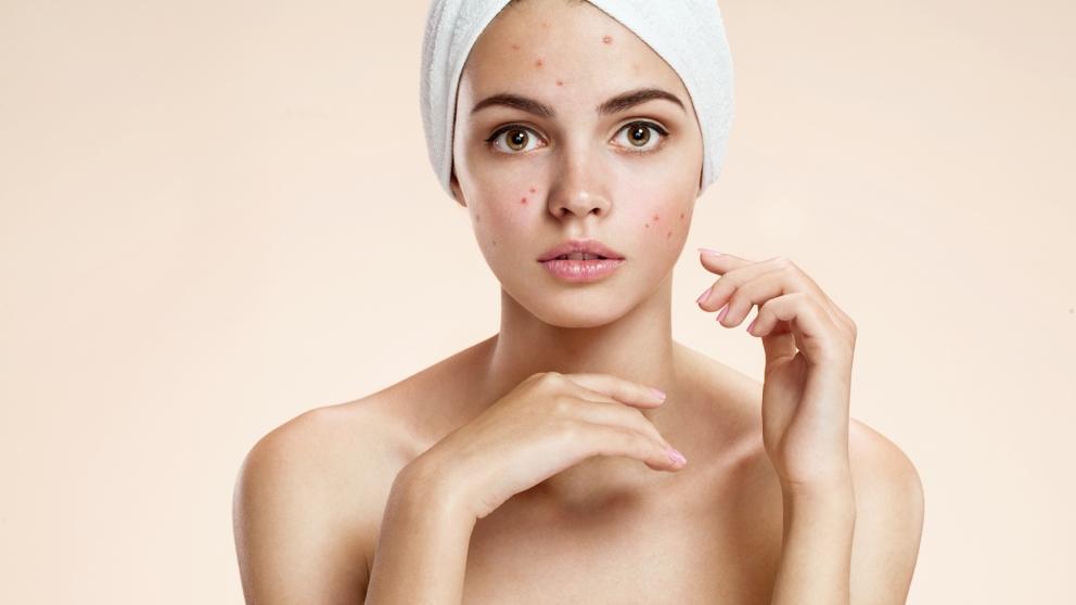 El acné es uno de los principales problemas de la piel