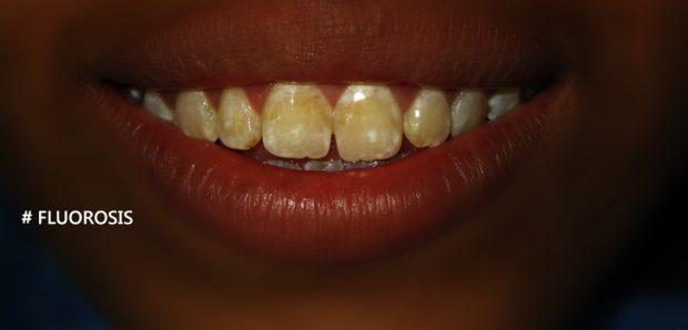 Manchas en dientes, fluorosis