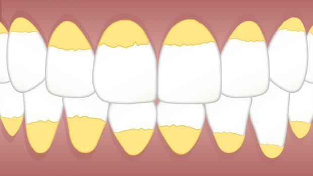 El sarro en dientes