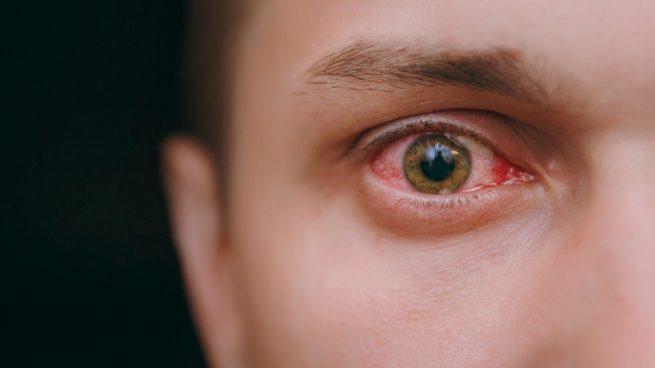 Lesiones en la retina