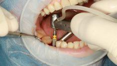 La necesidad de los implantes dentales