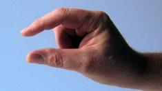 ¿Qué causas tienen las manos pequeñas?
