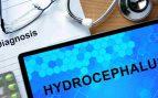 ¿Qué es la hidrocefalia?
