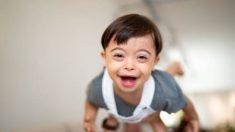 21 cosas que debes saber sobre el Síndrome de Down
