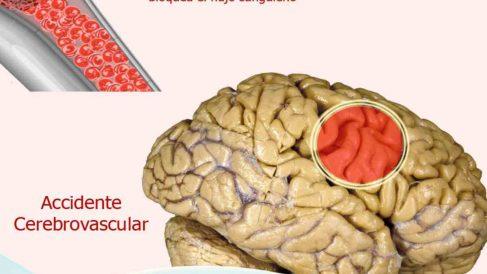 Curiosidades sobre la embolia cerebral