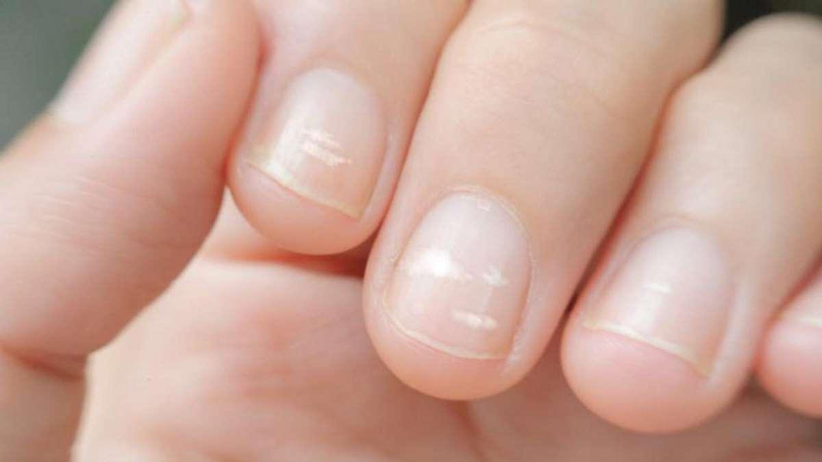 El estado de las uñas puede decir mucho de tu salud