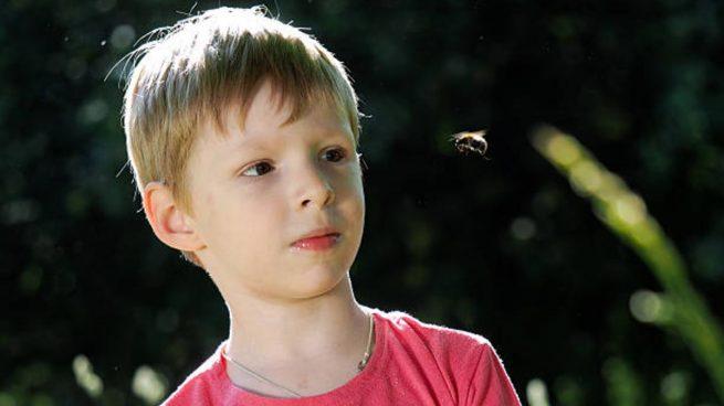 picadura abejas niños