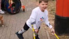 Facebook: Un niño de 5 años con las piernas amputadas por maltrato infantil recauda dinero para los médicos