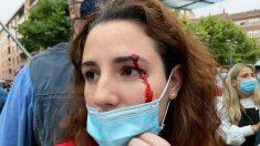 La diputada de Vox Rocío de Meer tras ser agredida por los proetarras en Sestao. (Foto: Vox)
