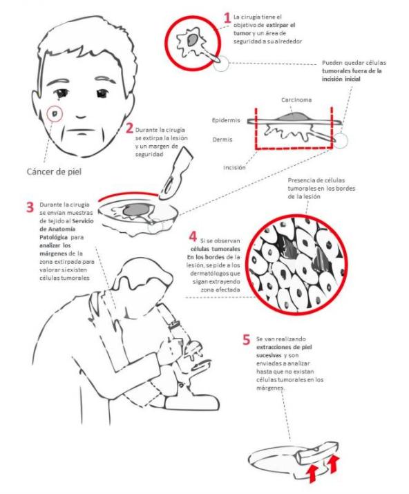La cirugía de Mohs, la técnica más precisa e innovadora frente al cáncer de piel