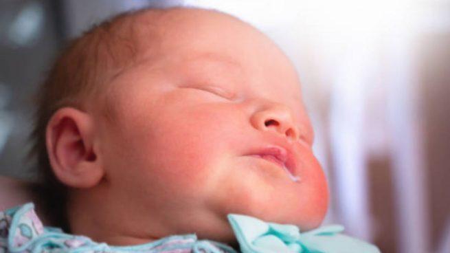 algodoncillo en bebés