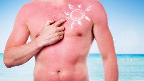 El sol puede provocar graves daños en la piel si no la proteges correctamente