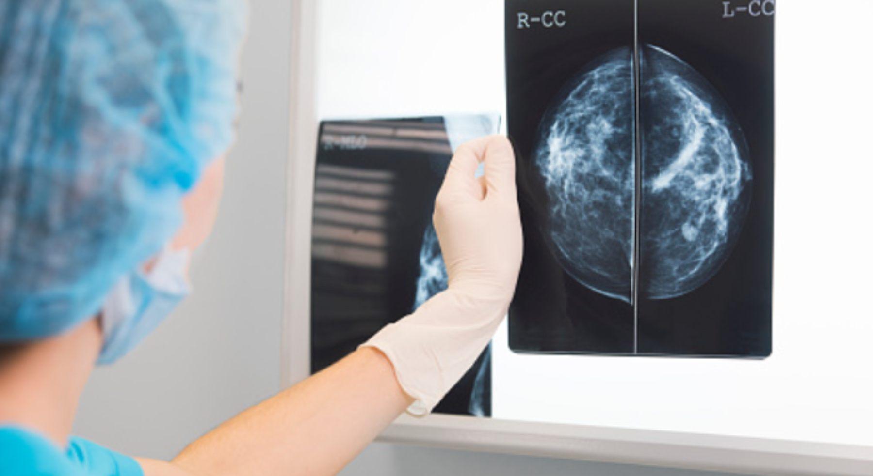 Día Mundial contra el Cáncer de Mama: 5 cosas que debes saber de la mamografía