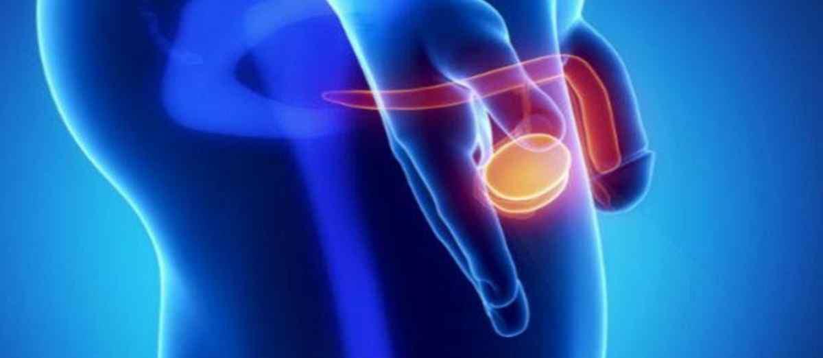 Lo que hay que saber de la cirugía de próstata