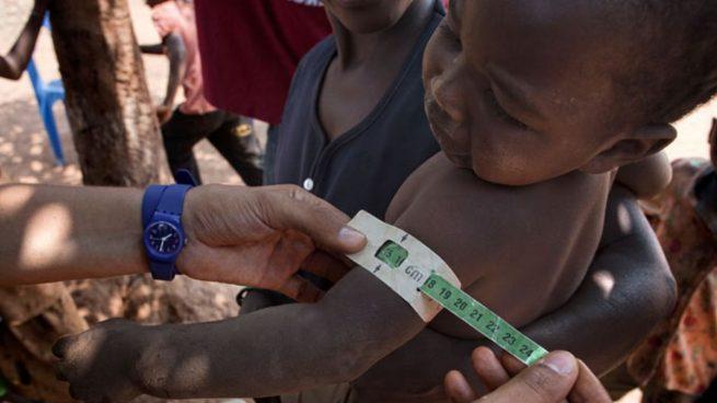 riesgo desnutrición niños