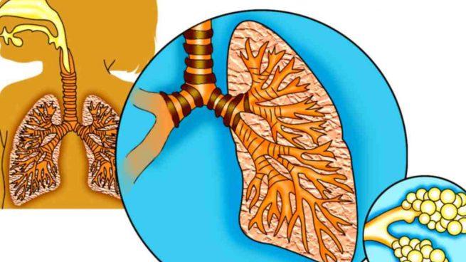 Bacterias en pulmones