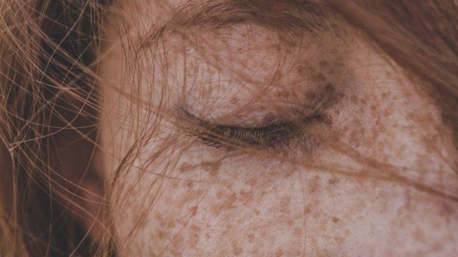 Carcinoma basocelular: el cáncer de piel que ha sufrido Mónica Carrillo