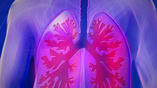 Día Mundial del Pulmón, el órgano más afectado por la Covid-19