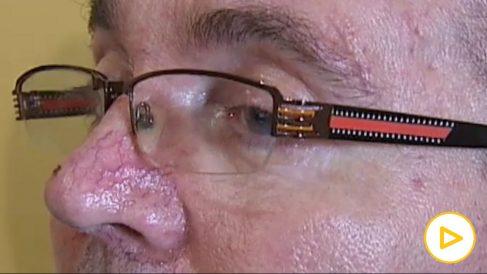 Comunicarse a través de las pupilas- así ayuda una APP a los enfermos de ELA
